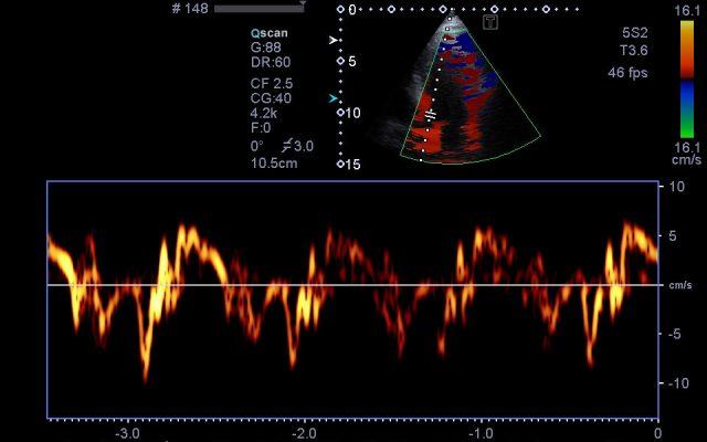 Echokardiographie (Herzultraschall, CW, PW, Farbdopler)